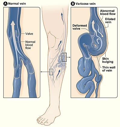 Varicose Vein Medical Illustration