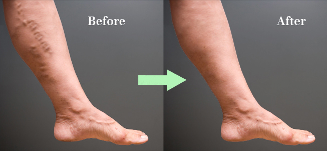 before and after photo varicose